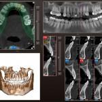 diagnova_producto_radiologia_dental_11