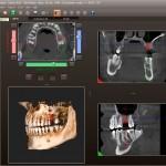 diagnova_producto_radiologia_dental_12
